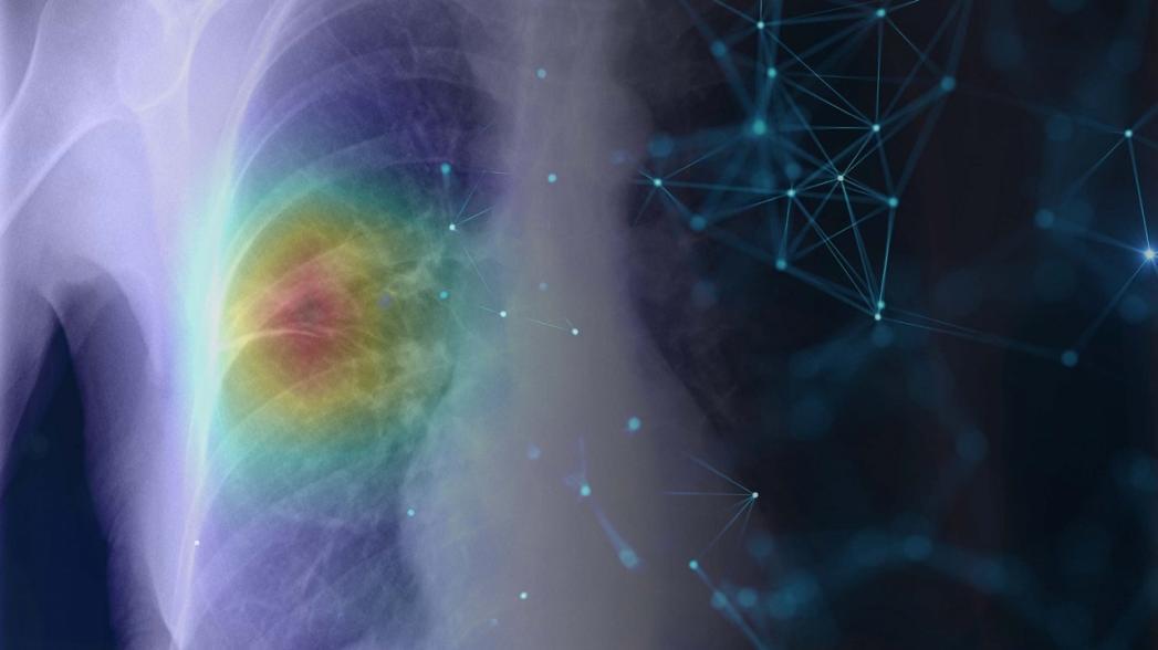 5 уровней использования искусственного интеллекта в медицине