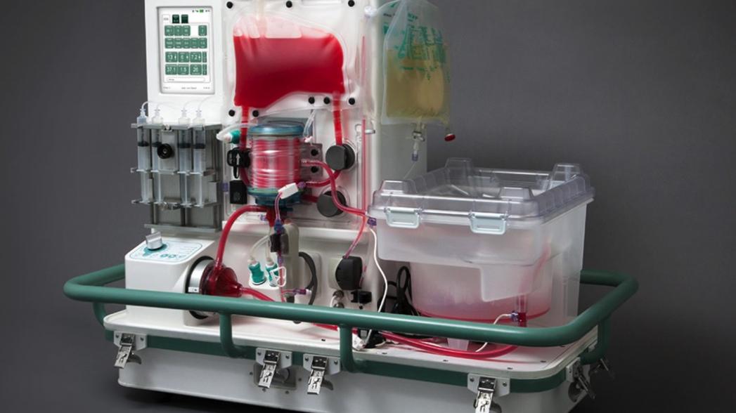 Рейс с пересадкой: какие цифровые решения доступны в трансплантологии