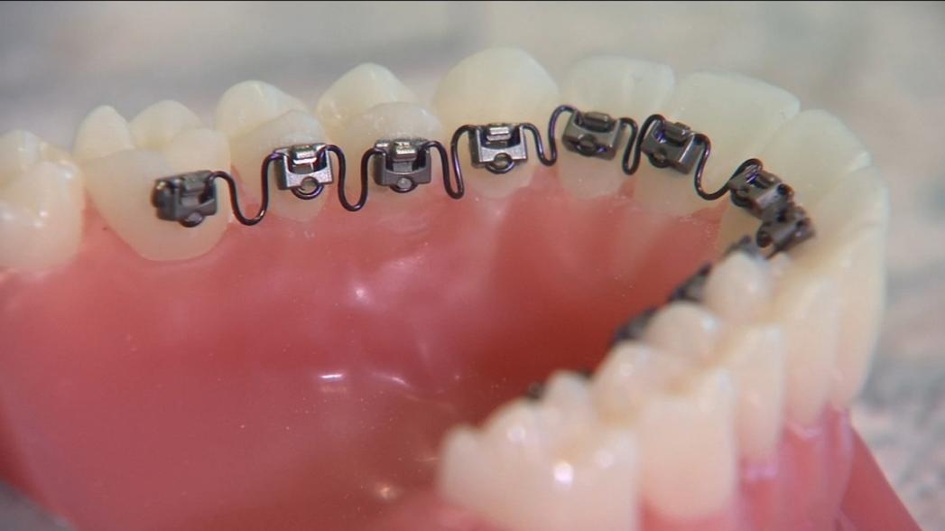 Искусственный интеллект для нового метода выпрямления зубов