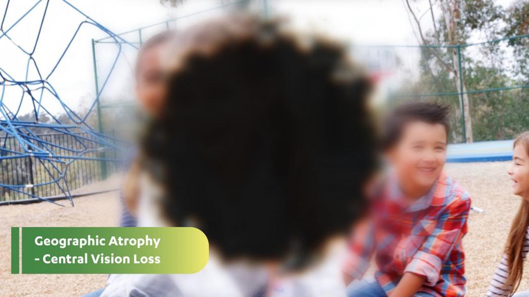 Британская офтальмологическая клиника Moorfields разрабатывает алгоритм для выявления географической атрофии сетчатки