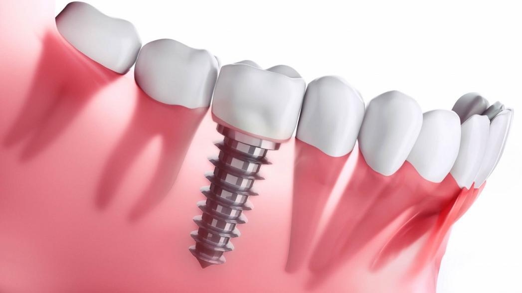 """""""Умный"""" зубной имплантат уничтожает бактерии"""