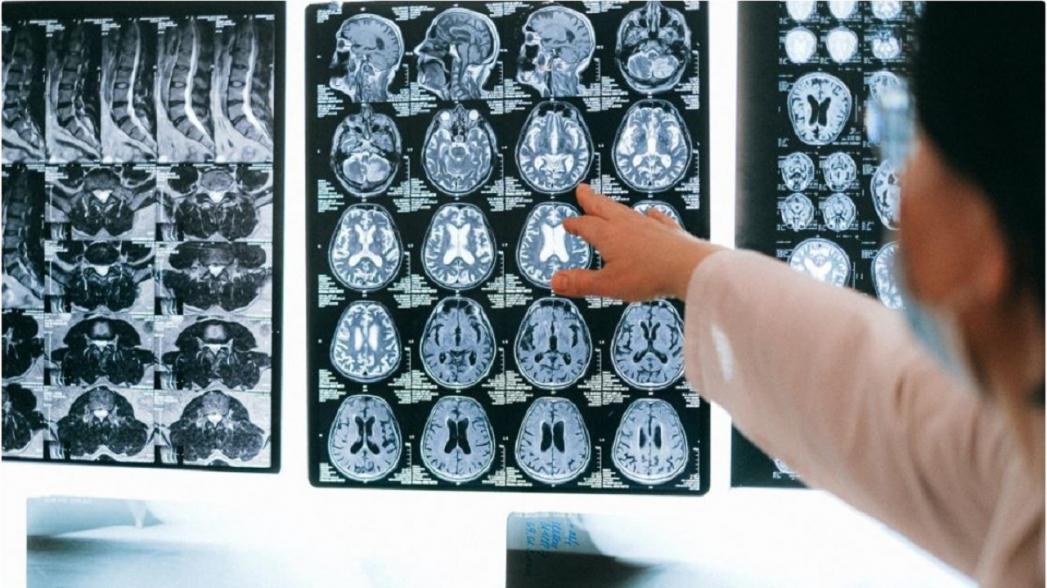 Предсказать болезнь Альцгеймера почти со 100%-точностью