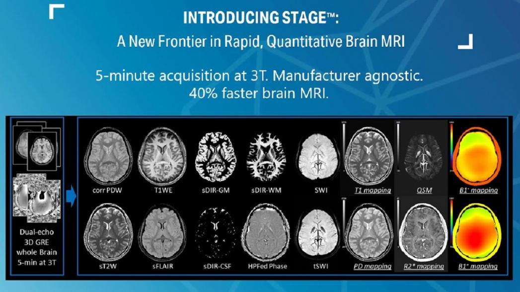 Система для визуализации мозга компании SpinTech ускоряет диагностику болезни Паркинсона и рассеянного склероза