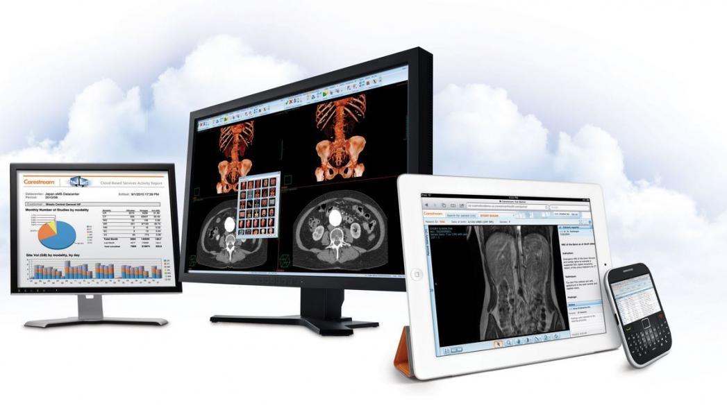 Мобильная система медицинской визуализации Carestream