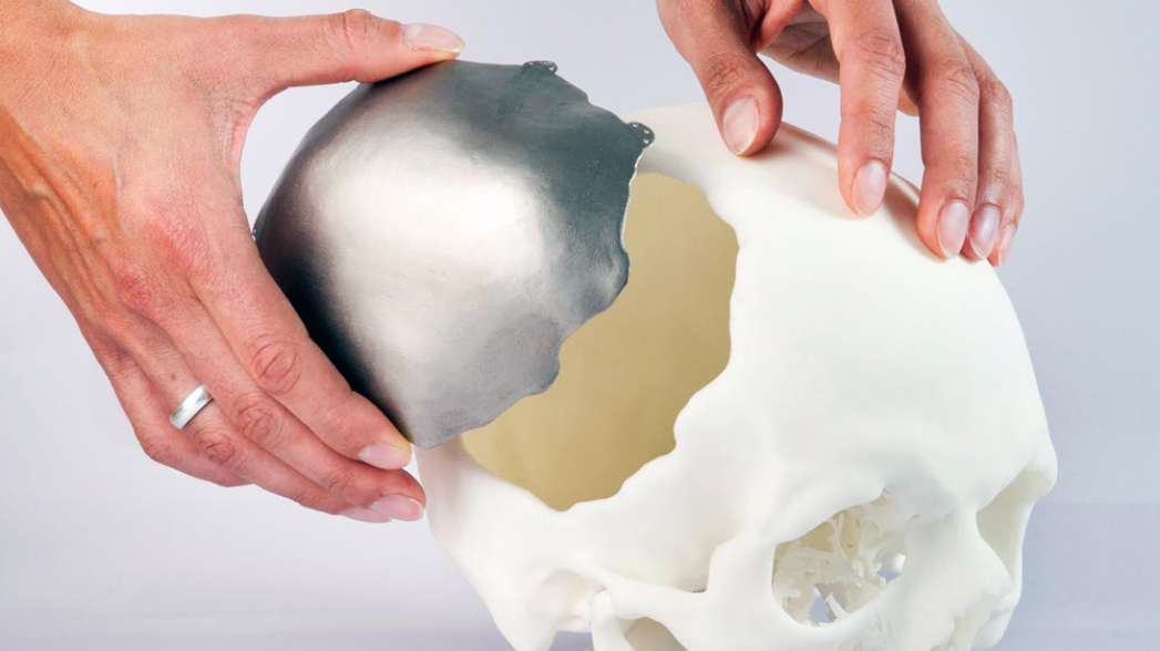 Краткий путеводитель по 3D-печати в медицине