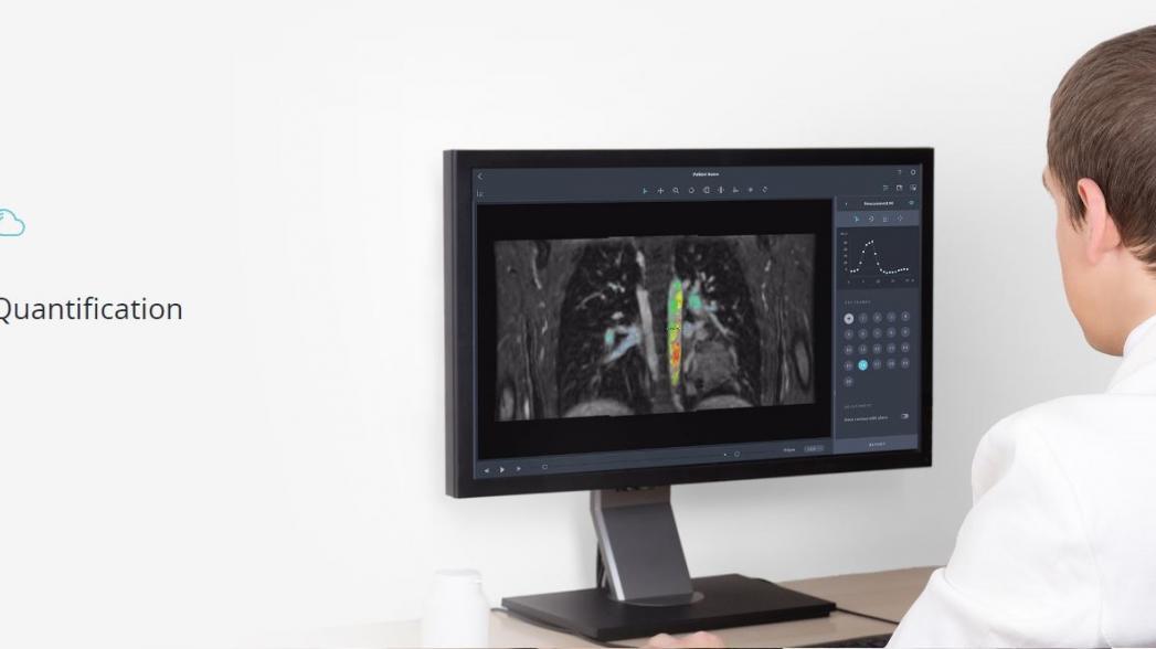 5 лучших систем искусственного интеллекта для обработки медицинской изображений