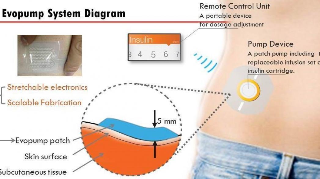 Миниатюрная помпа Cam Med для искусственной поджелудочной железы