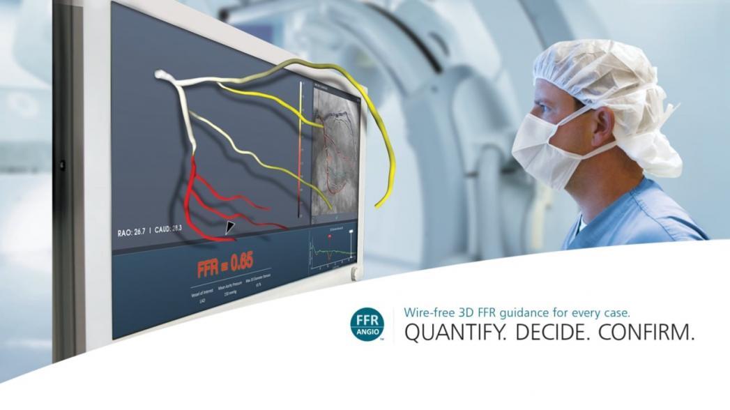 Рентгеновская система для измерения фракционного резерва кровотока
