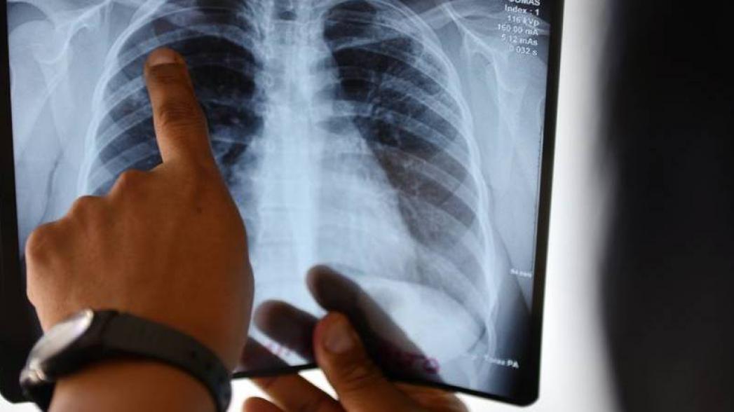 Виртуальная туберкулезная клиника для удаленных регионов может быть эффективной