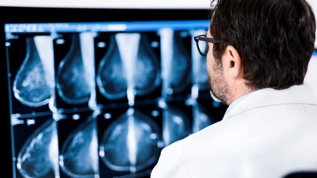 ProFound AI for 2D Mammography для диагностики рака груди