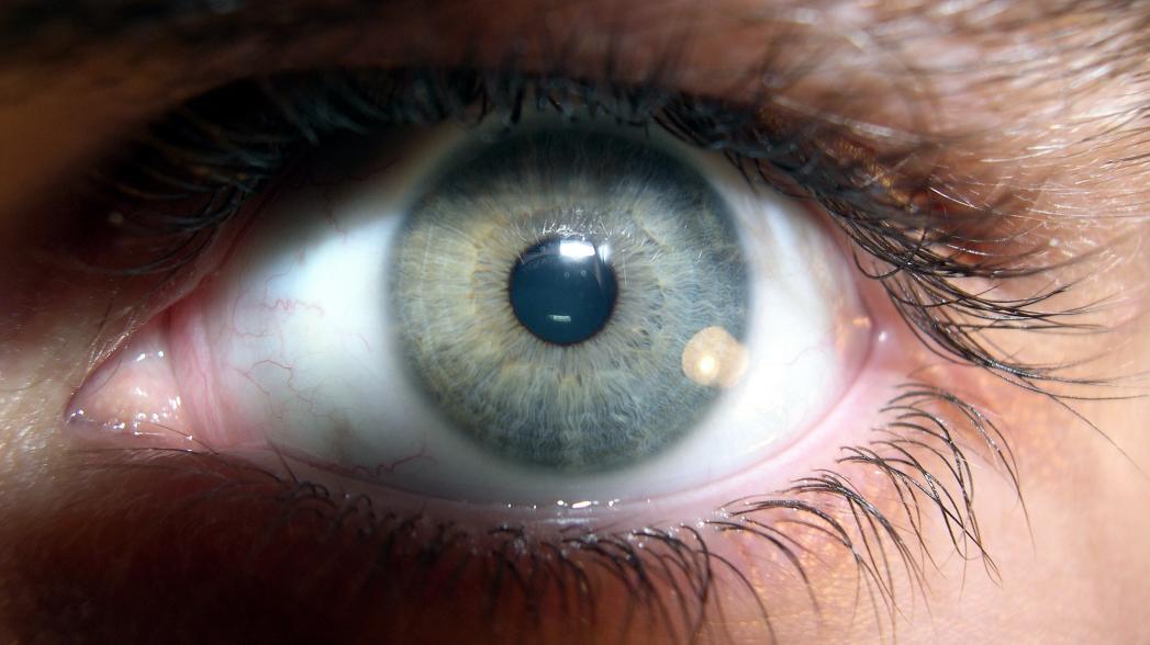 Контактные линза контролируют развитие глаукомы