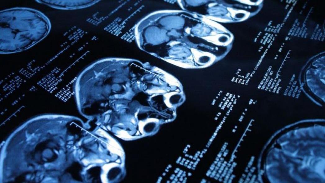 Искусственный интеллект для диагностики инсульта