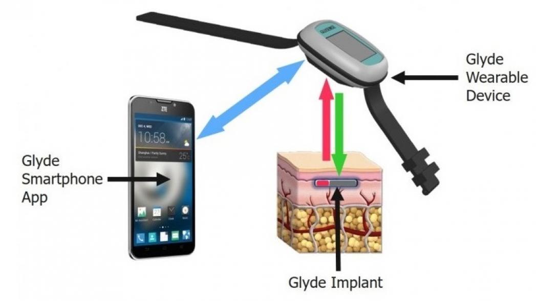 Имплантат для мониторинга уровня сахара