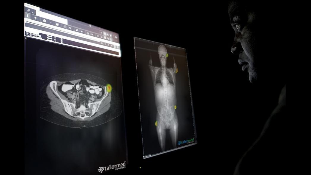 Новая система анализа медицинских изображений от AIDoc