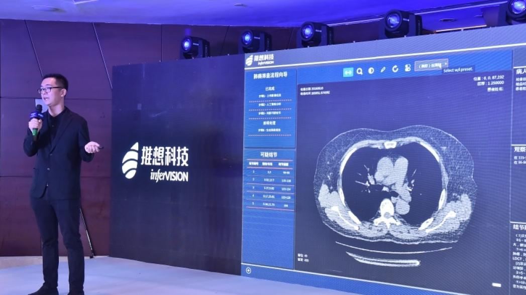 Алгоритм Infervision обнаруживает наличие опухоли на стандартных медицинских изображениях