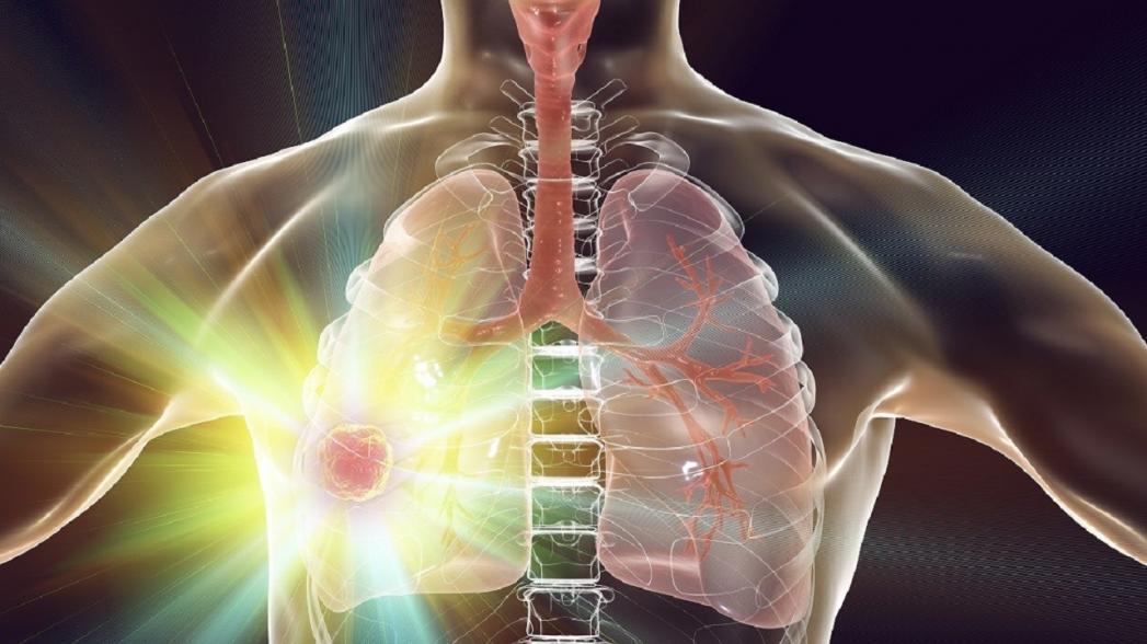 Графеновый биосенсор для обнаружения рака легких