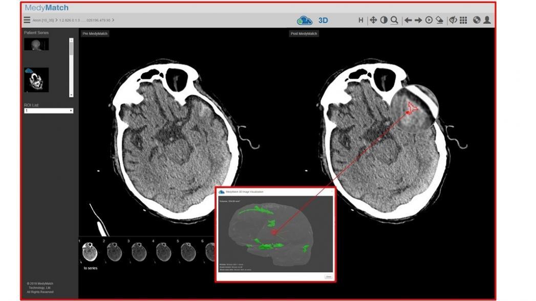 Искусственный интеллект для диагностики инсульта в машинах неотложной помощи