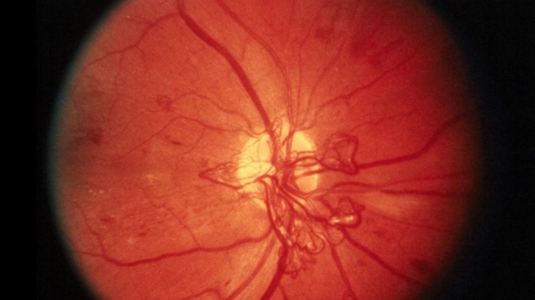Искусственный интеллект для диагностики диабетической ретинопатии