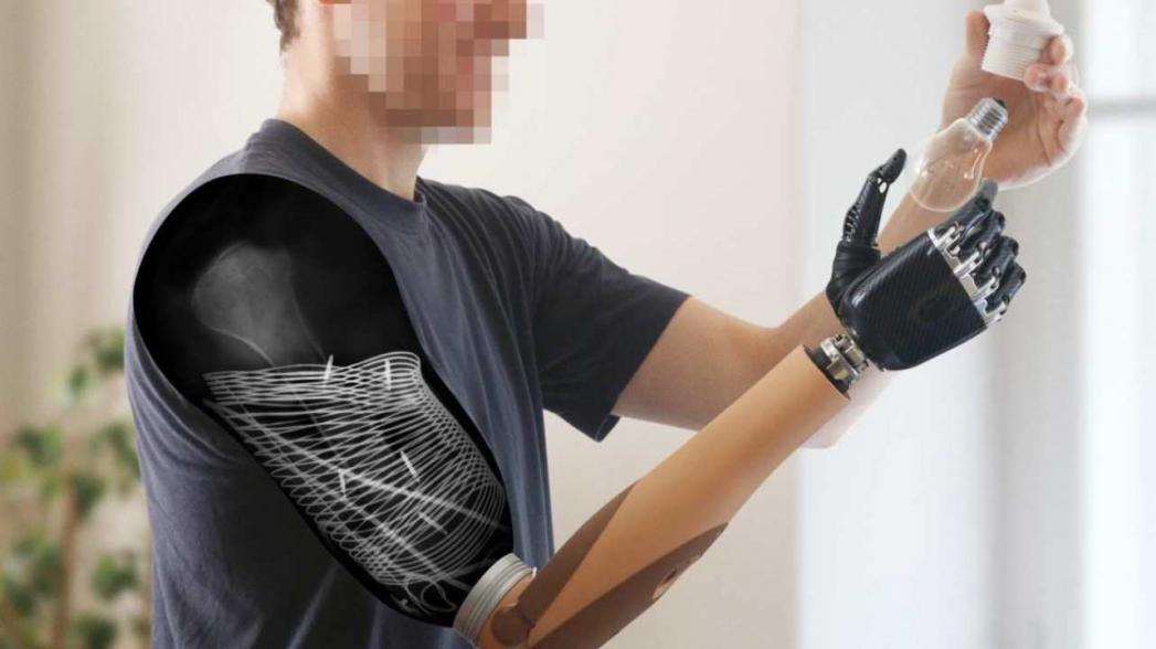 Имплантированные электроды улучшили функциональность протеза руки