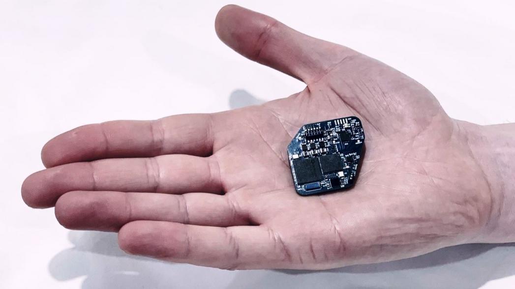 Беспроводной «кардиостимулятор для мозга»
