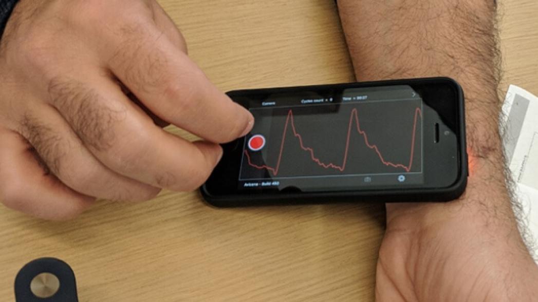 Приложение позволяет измерять жесткость артерий
