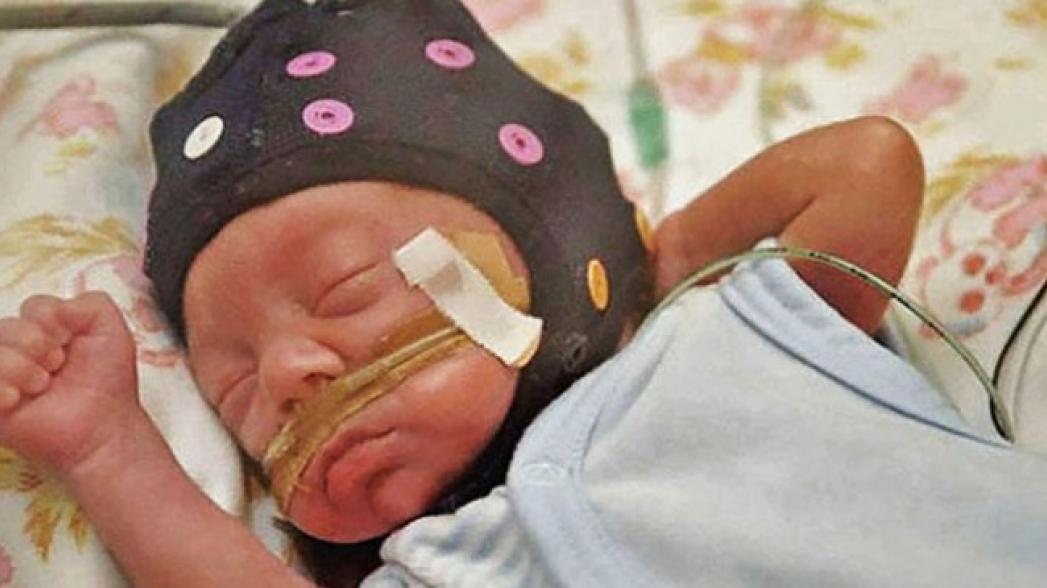 Искусственный интеллект анализирует мозг недоношенных детей