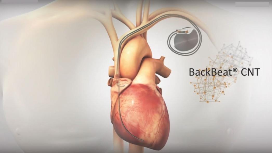 Имплантат для снижения кровяного давления