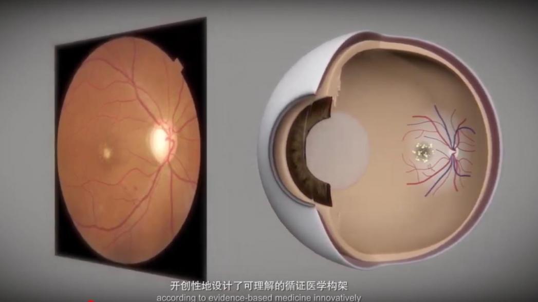 Китайские больницы использует AI-системы для обнаружения глазных заболеваний