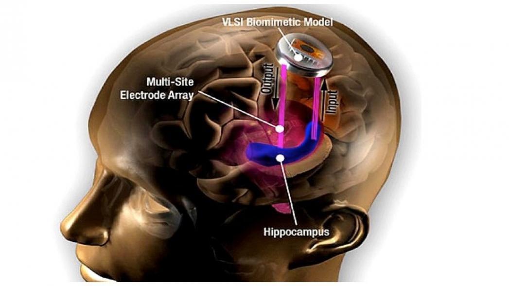 Имплантат в мозг, который улучшает память