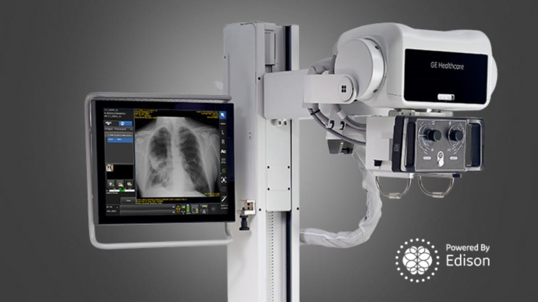 AI-система GE Healthcare для обнаружения коллапса легкого разрешена к применению