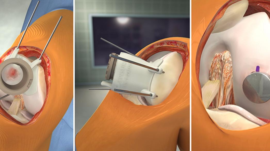 Симулятор для хирургии коленного сустава от Touch Surgery и Episurf Medical