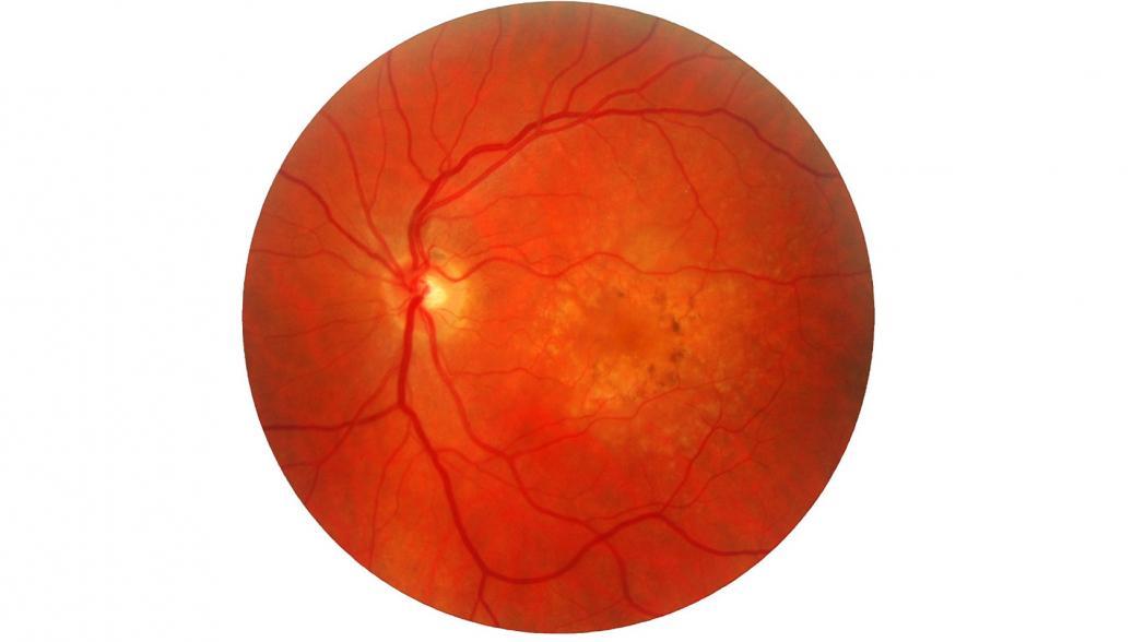 Искусственный интеллект Google в помощь офтальмологии