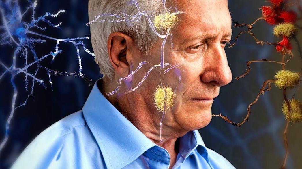 Транскраниальная стимуляция улучшает рабочую память