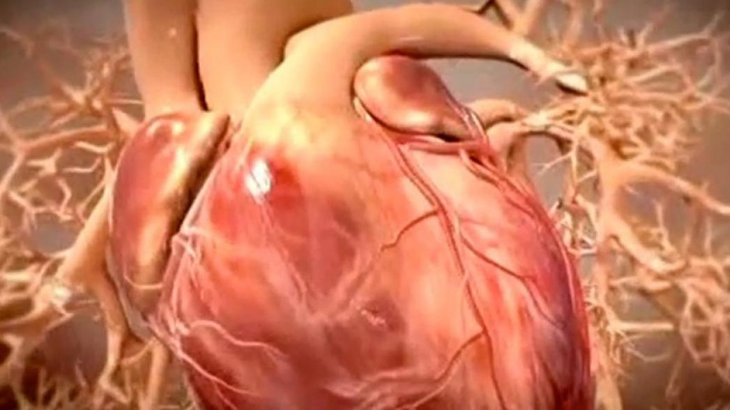 """Поставить диагноз с помощью виртуального сердца, созданного """"умным"""" алгоритмом"""