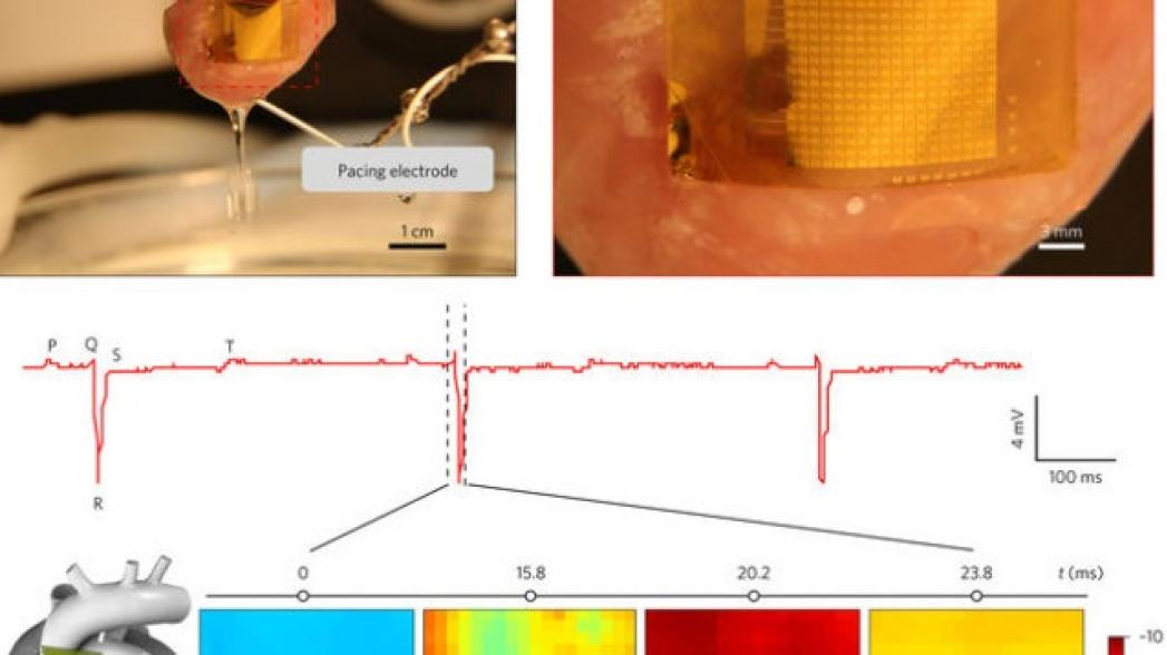 Тонкий сенсор, который может контролировать сердце в течение 70 лет