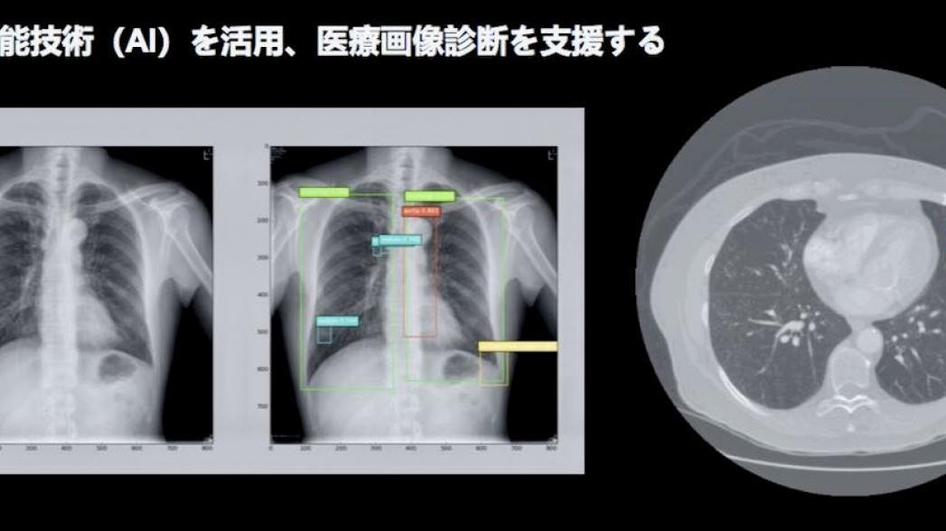 200 китайских больниц начали использовать AI-решение компании Infervision