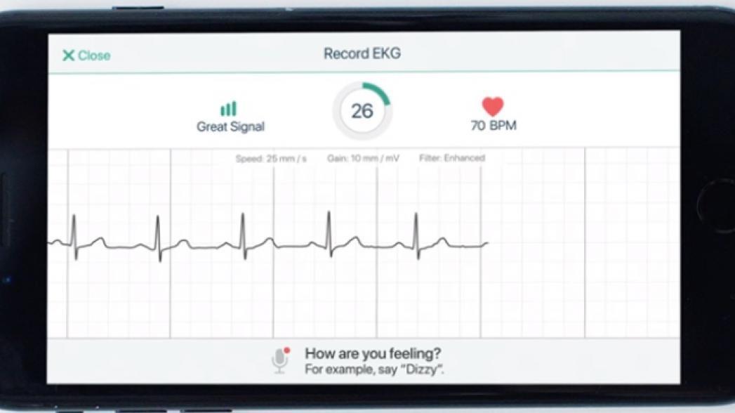 AliveCor для диагностики врожденного синдрома удлиненного интервала QT