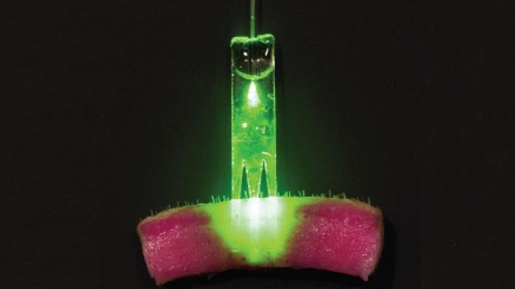 Кожный регенератор: из фантастики в реальность