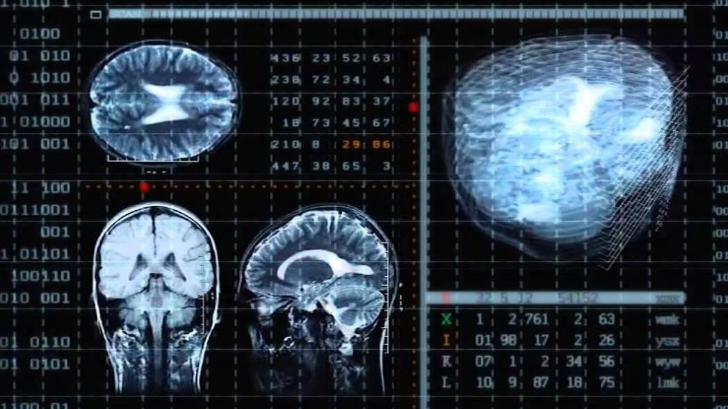 IBM показала новые средства анализа медицинских изображений