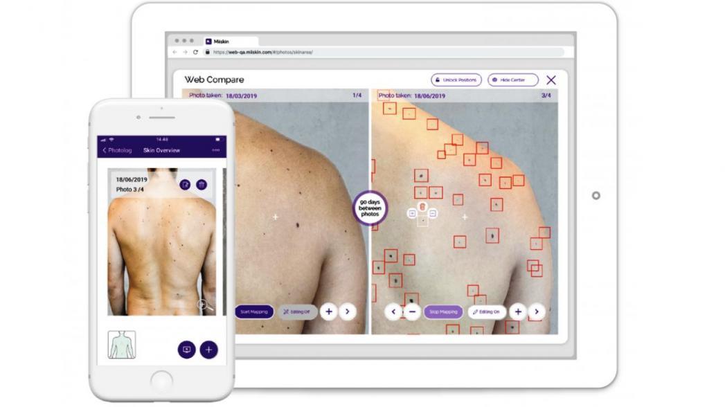 Miiskin использует AI для обнаружения признаков меланомы