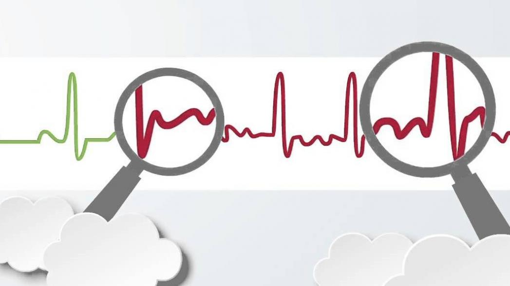 Система мониторинга сердца MoMe Kardia выходит на рынок
