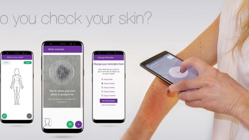 Дерматологическое приложение Miiskin получило поддержку British Skin Foundation