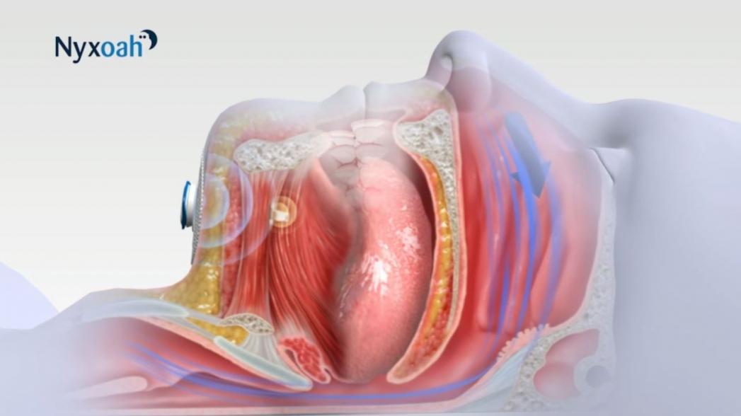 Genio: имплантат, лечащий обструктивное апноэ сна