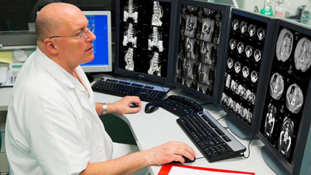 IBM Watson в 90% случаев предлагает такое же лечение, что и врачи