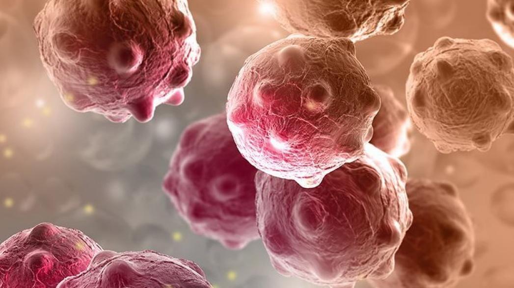 Устройство для диагностики рака по моче