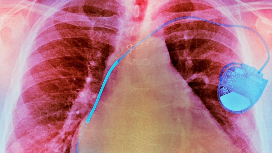 Имплантат, передающий информацию сквозь тело со скоростью 30 Мбит/с