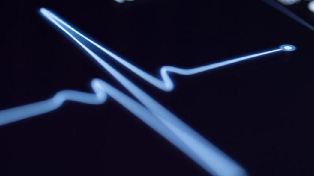 Искусственный интеллект прогнозирует инфаркт. И делает это лучше врача