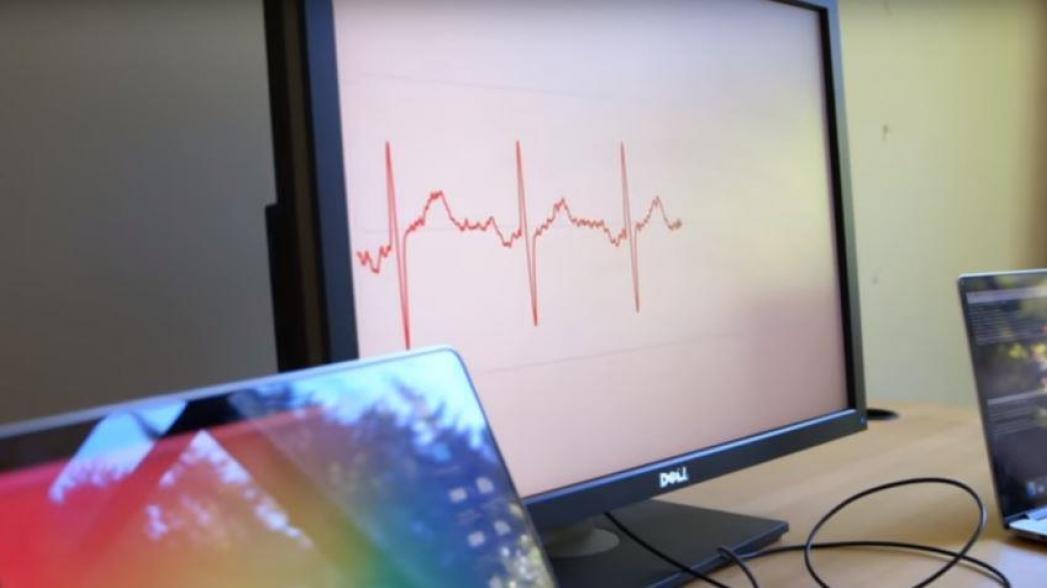 Алгоритм диагностирует аритмию как опытный кардиолог