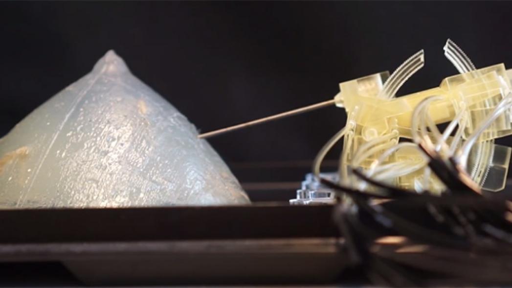 Робот, совмещенный с МРТ, обеспечивает точную биопсию