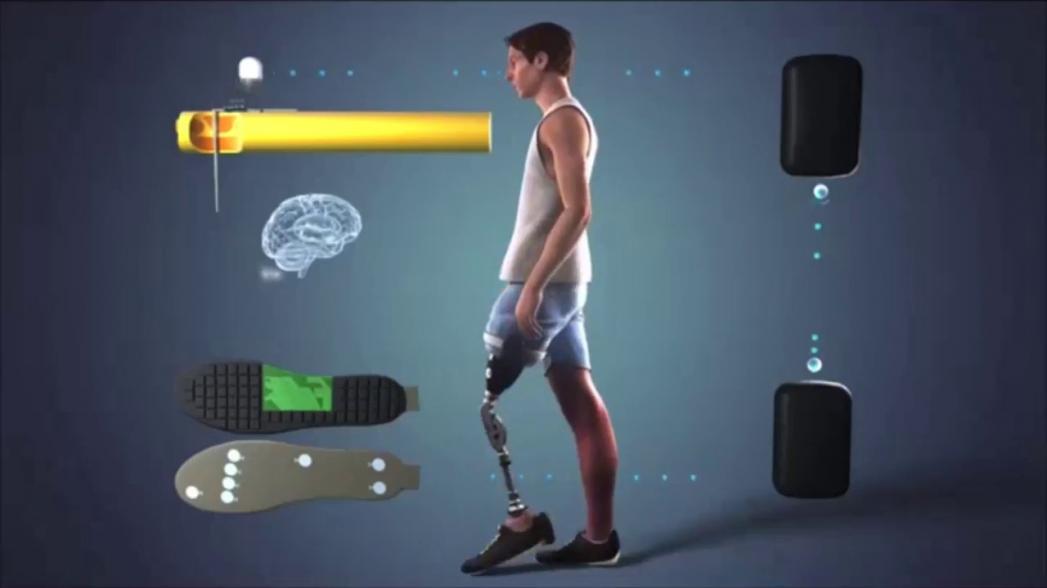Протез ноги с обратной связью облегчает ходьбу и избавляет от фантомных болей